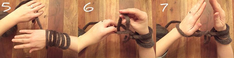 Arme statt Nadeln | Schwatz Katz
